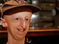 «Ciapa la moto» per aiutare Sammy Basso, il ragazzo affetto da progeria